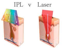 IPL-laser-image