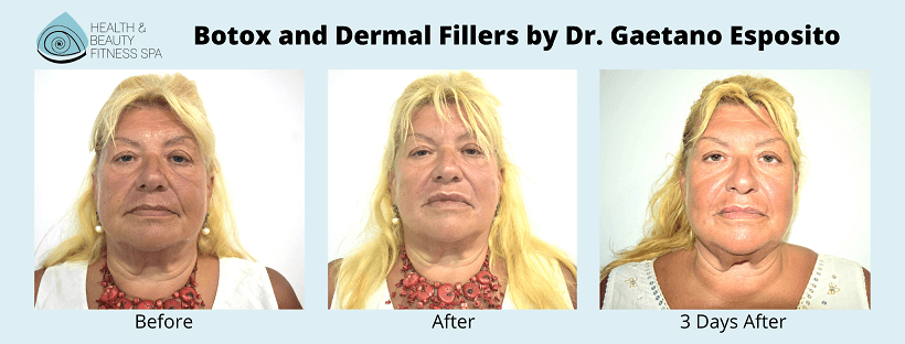 botox and derma filler before and after
